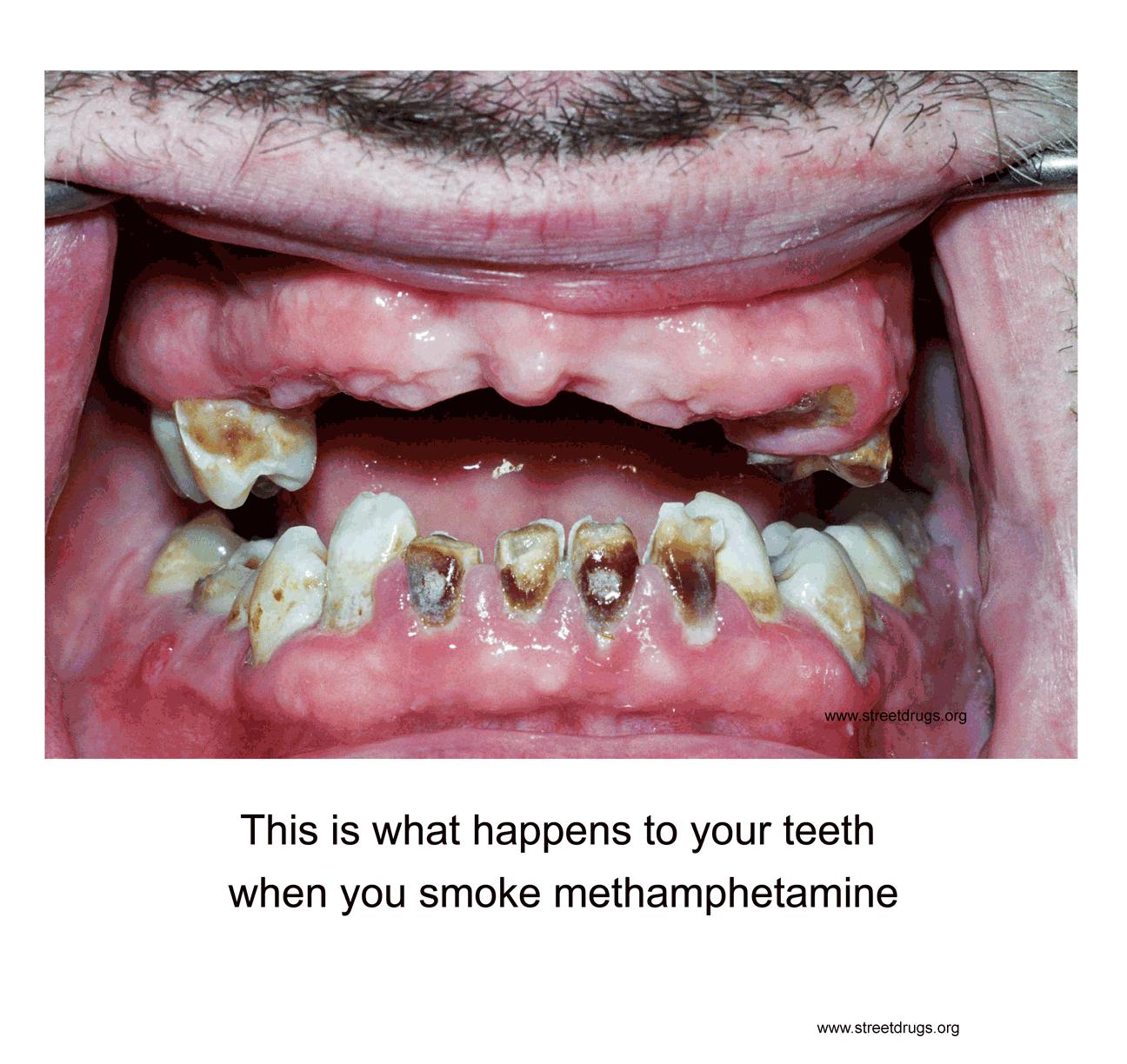 Meth Teeth